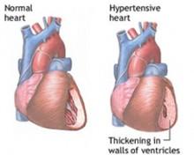liječenje hipertenzije simptoma simptoma hipertenzije, karpalni ekspander