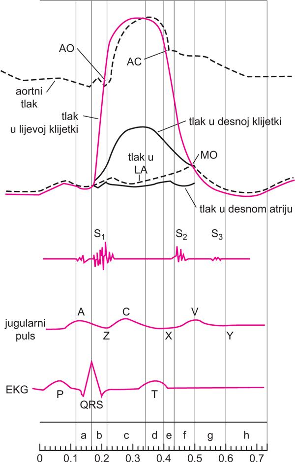 hipertrofija lijevog ventrikula
