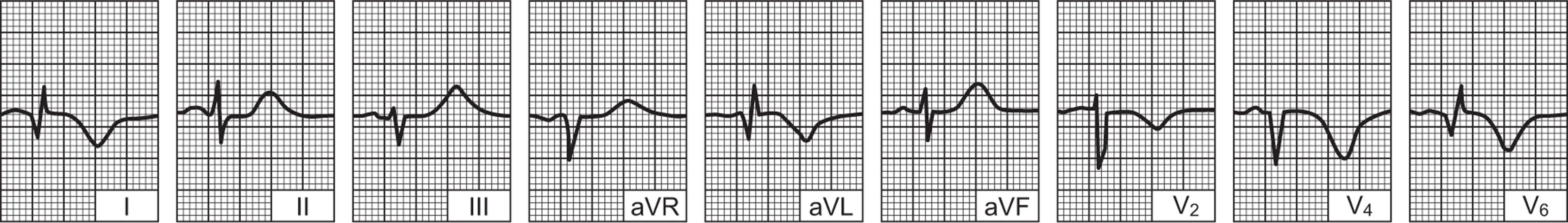 opsežna infarkt stražnji zid od srca