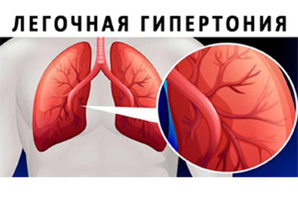 dijagnoza hipertenzije stupnja rizika 2 2 da li je moguće da se liječe hipertenziju