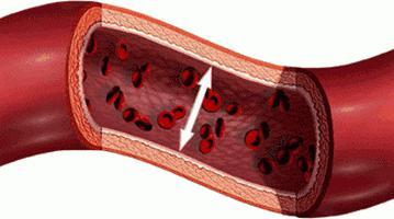 ljubav i hipertenzija shema lijekovi za liječenje hipertenzije