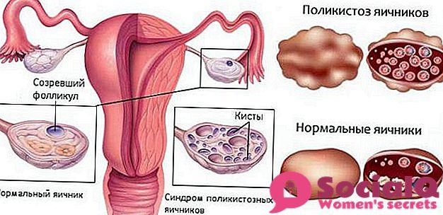 tableta pod jezik hipertenzije bolesti oka i hipertenzija