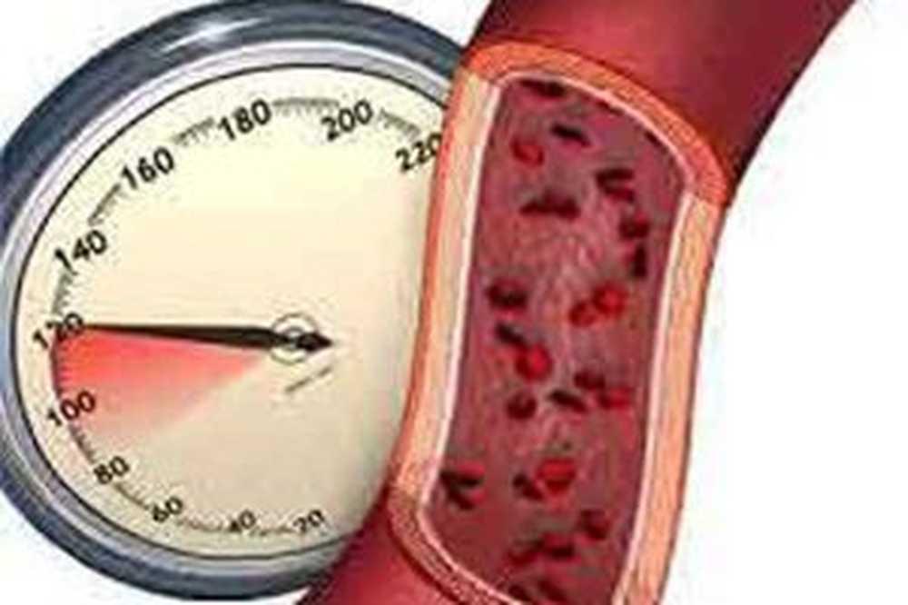 2. stupanj rizika od hipertenzije 3