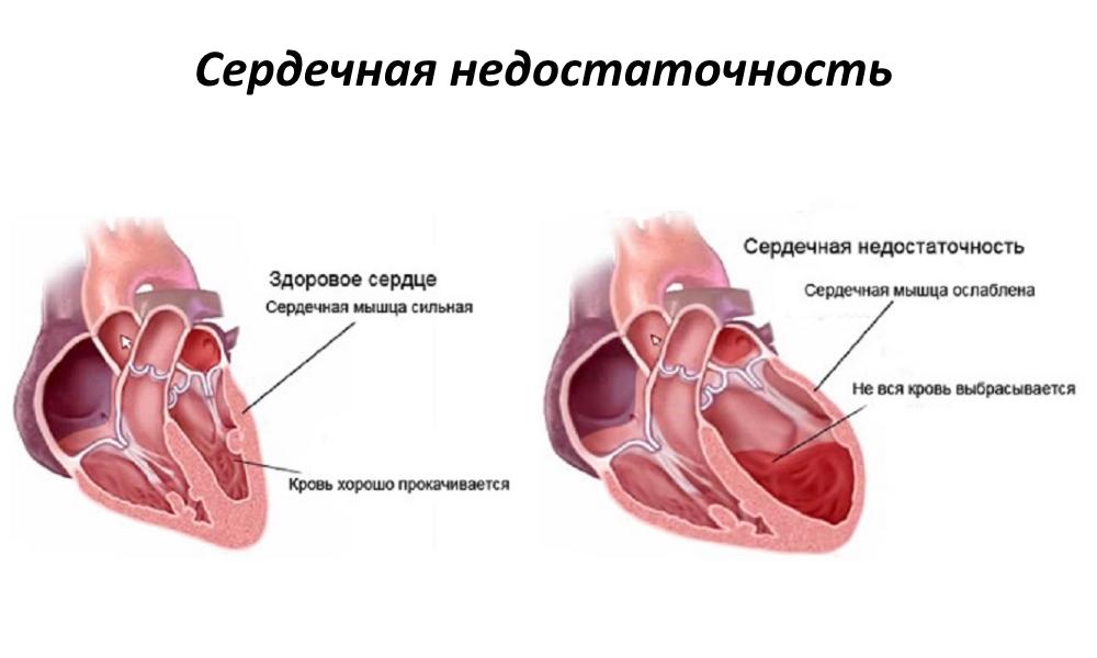 Stopa otkucaja srca kod djece prema dobi - Kako liječiti