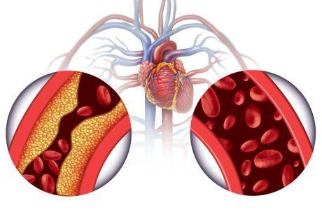 korak hipertenzija