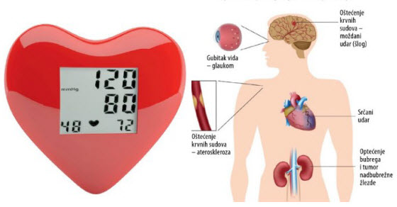 tablete hipertenzija bradikardija bedstraw i hipertenzija
