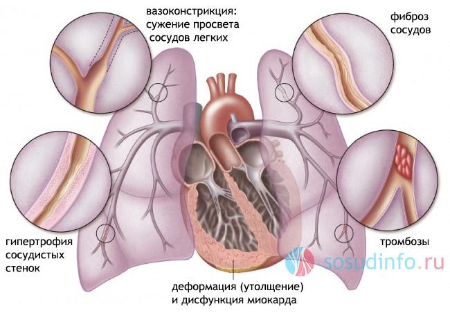 srčani lijevog ventrikula hipertenzija 2 asd liječenje hipertenzije