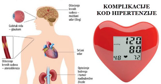 srčani simptomi liječenju hipertenzije to znači da korak hipertenzije