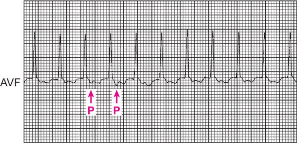 tahikardija, liječenje hipertenzije tuš ili kadu sa hipertenzijom