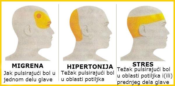 hipertenzija morozova kapi