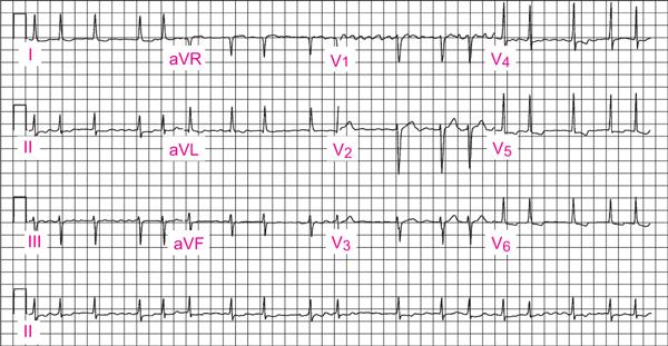 kronično zatajenje srca i hipertenzije