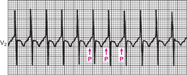 tahikardija, liječenje hipertenzije