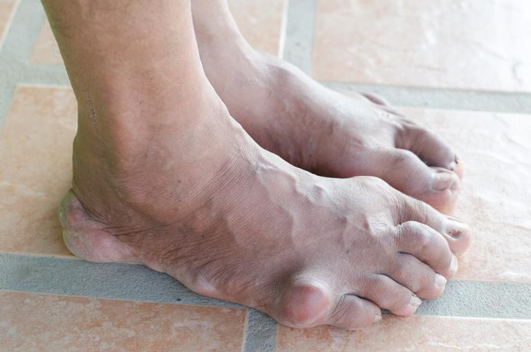liječenje cerebralne cirkulacije i hipertenzije sol prehrana bez hipertenzije
