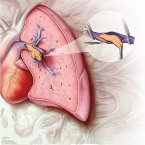 usluga s hipertenzijom