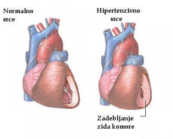 hipertenzija korak stupnjem oštećenja