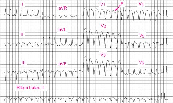hipertenzija i srčani udar koji općenito