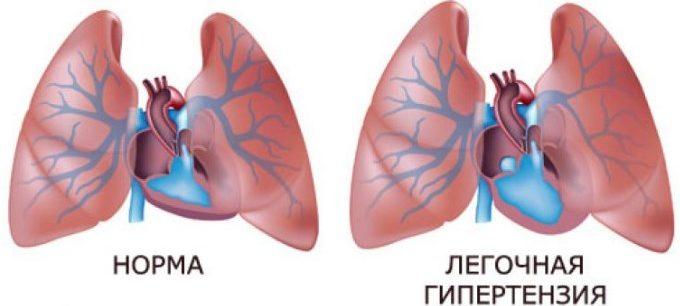 leo bokeria na liječenje hipertenzije