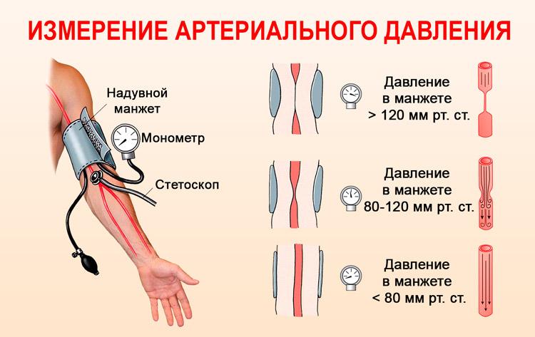 uzroci rane hipertenzije uloga pomoćnik u liječenju hipertenzije
