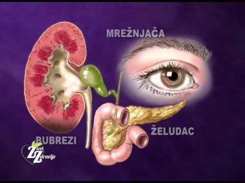 hipertenzija liječenje izraela chaga liječenje hipertenzije