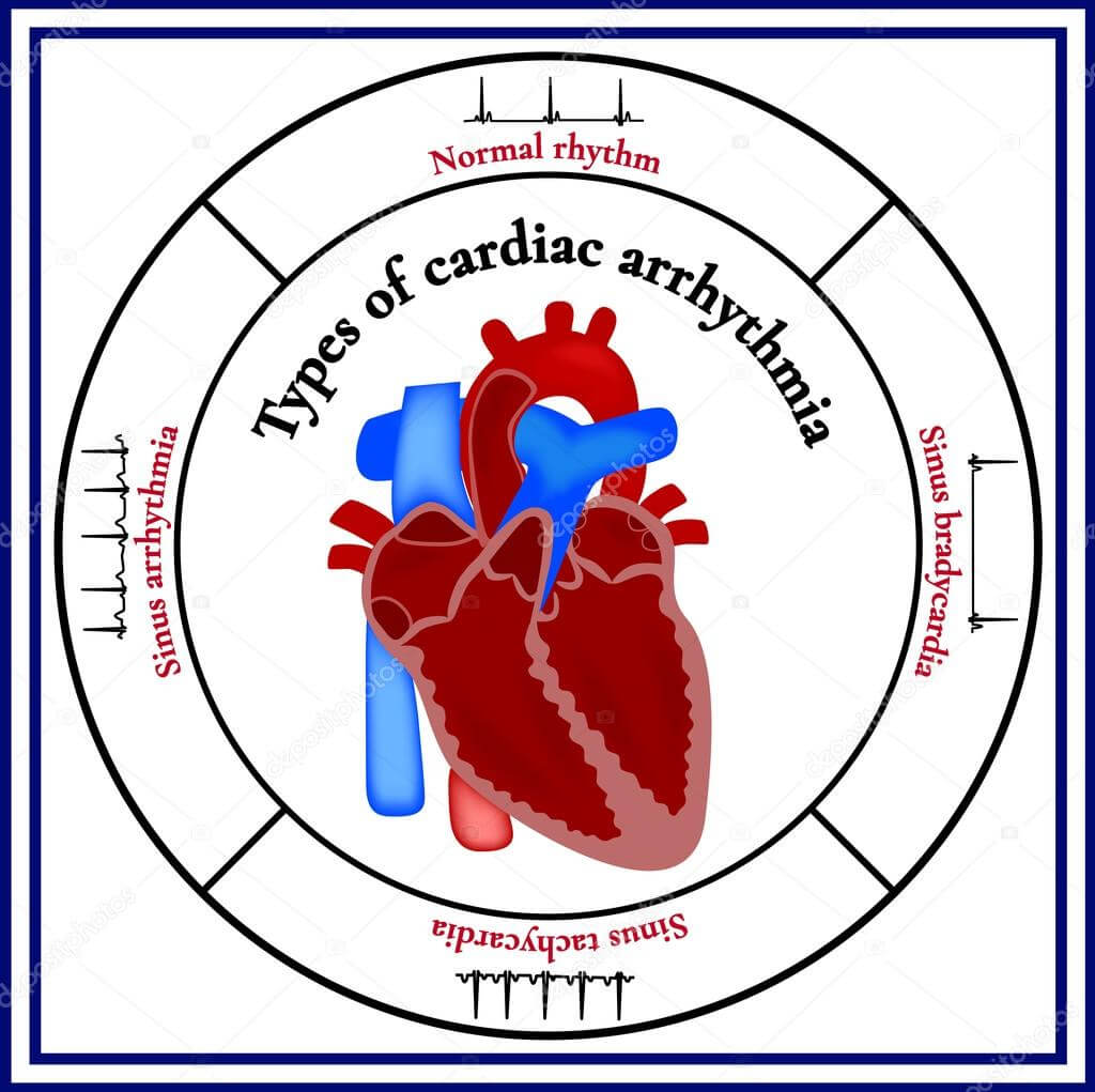 steroidi hipertenzija parafin i hipertenzija