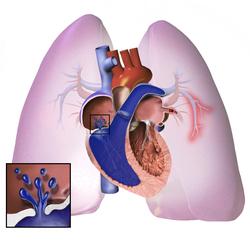 Bol + hipertenzija u srcu ,u kojoj klimi je bolje živjeti s hipertenzijom