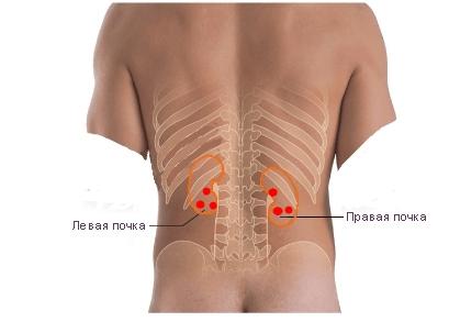 Liječenje hepatitisa C s pijavicama