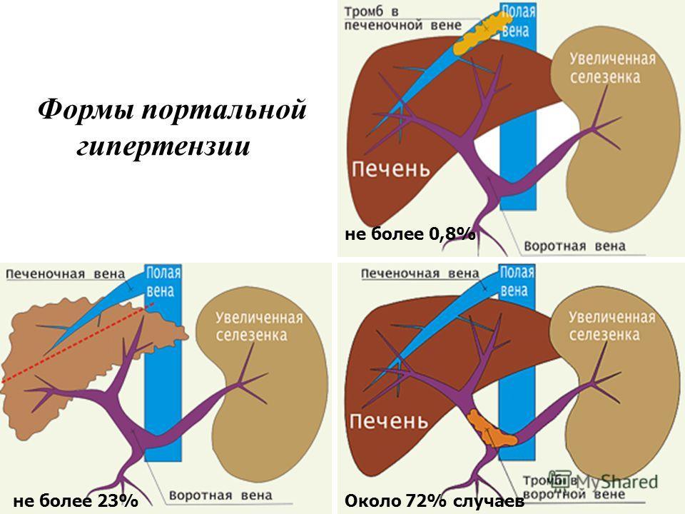 bokeria hipertenzija