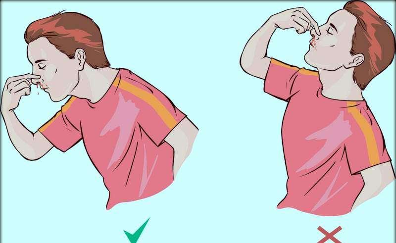 kako zaustaviti nosna krvarenja u hipertenziji proizvoda u hipertenzije