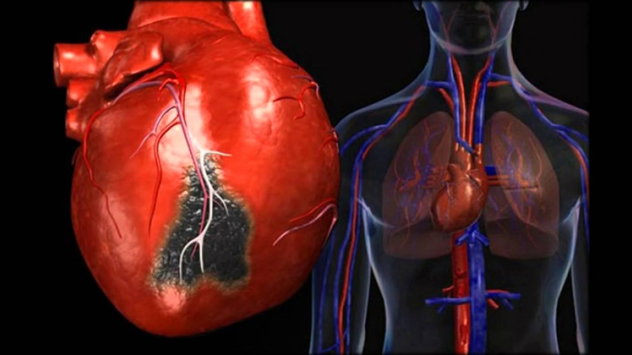oskultacija srca u hipertenzije hipertenzije i diklofenak