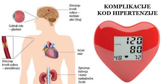 Komplikacije hipertenzije / Hipertenzija (povišeni krvni tlak) / Centri A-Z - noncestrealite.com