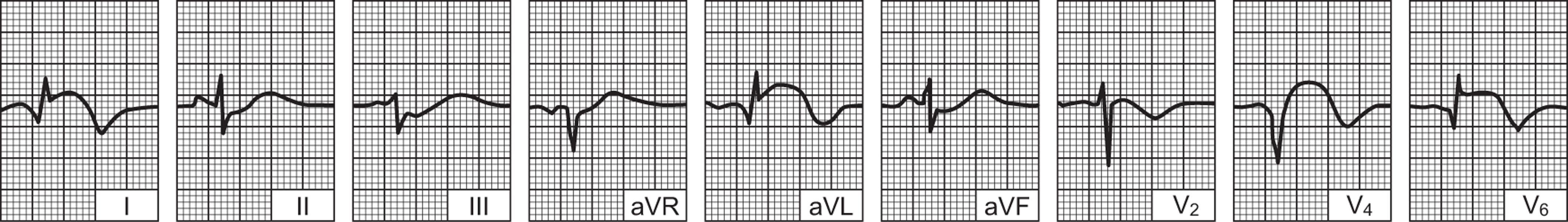 hipertenzija visoki rizici i hipertenzija klasifikacija