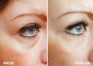 hipertenzija očiju manjoj mjeri girudoterapiya koristi i štete za hipertenziju