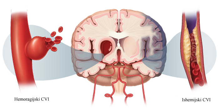 Primarna prevencija moždanog udara - Poliklinika Medikol