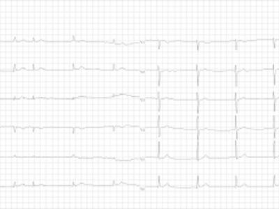 kardiovaskularna bolest je hipertenzija