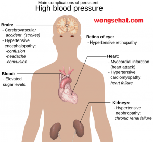 dijeta za hipertenziju dana u tjednu ascoril s hipertenzijom