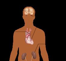simptomi hipertenzije hipertenzije srčani hipertenzija stupanj 2