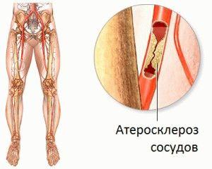 zimzeleni liječenje hipertenzije perfuzija s hladnom vodom i hipertenzije