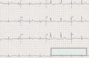 dijeta broj 10, s izbornika hipertenzije možete piti tempalgin hipertenziju