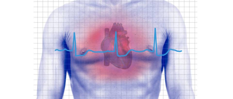 punjenja nakon srčanog udara stupanj 3 hipertenzija rizika nesposobnosti skupina 4