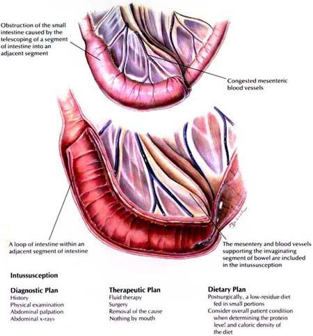 hipertenzije i psihosomatika