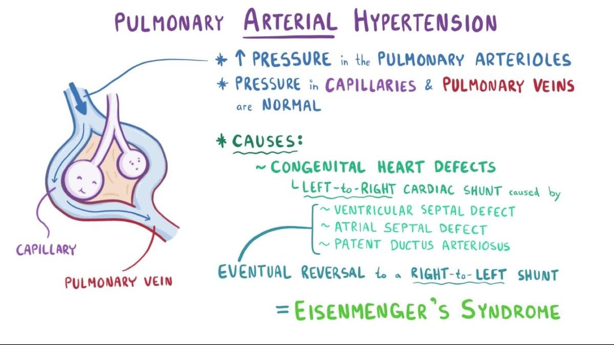 hipertenzije, cerebrovaskularni on