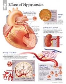 stupanj rizika hipertenzije 3 je moguće kupanje s hipertenzijom