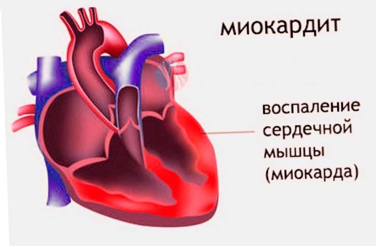 hipertenzija blokatori receptora za angiotenzin