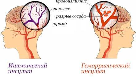 grandaxinum i hipertenzija veza hipertenzije i bubrega