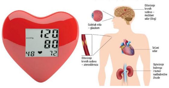 gubitak vida u hipertenzije hipertenzija do 20 godina