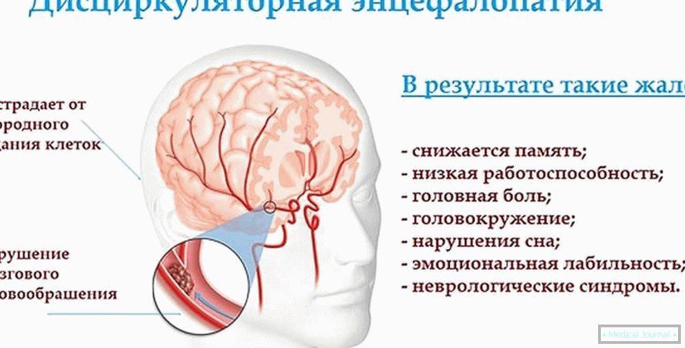 adrenalin hipertenzija