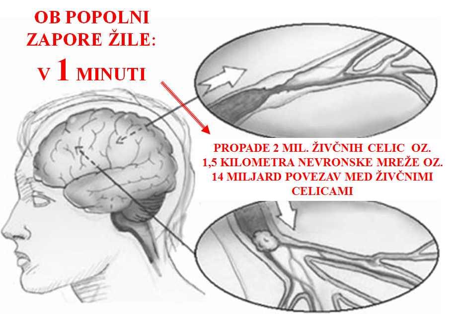 hipertenzija krvne žile kako utega za hipertenziju