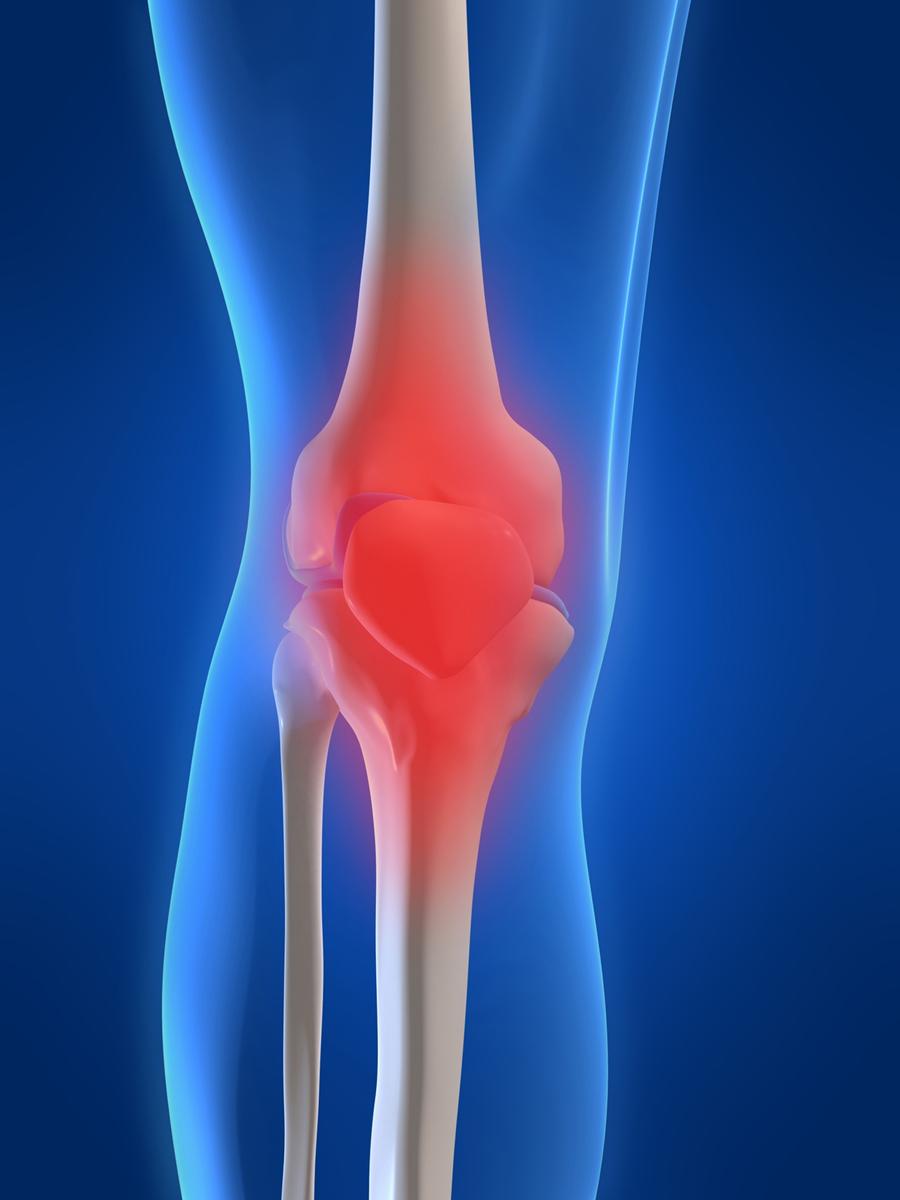 hipertenzija može biti po chondrosis liječenje hipertenzije squatovima