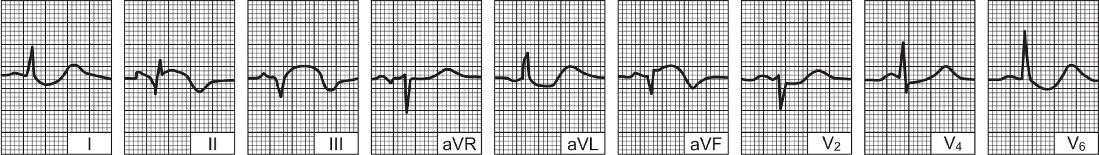 hipertenzija nakon koronarnom angiografijom ako hipertenzija glavobolja kako liječiti