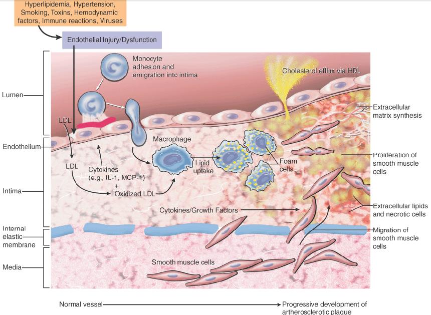 hipertenzije, ateroskleroze aorte